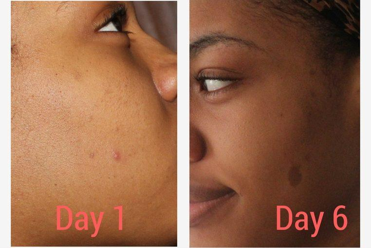 how to eliminate acne redness